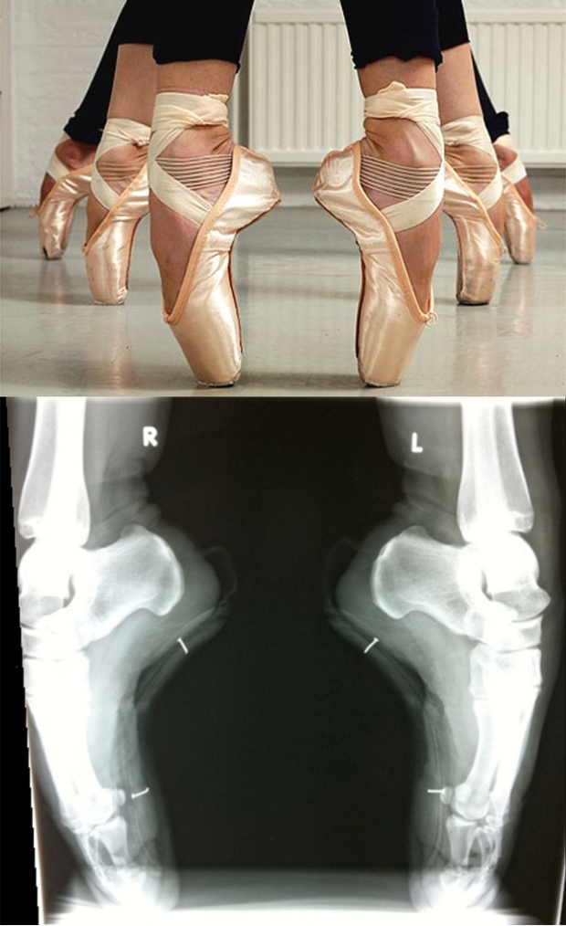 ballerinahardcore